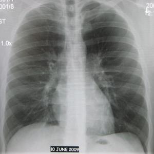 В этом году управление здравоохранения намерено провести масштабный скрининг туберкулёза