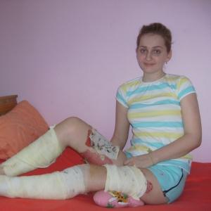 Ксения Филимонова, пострадавшая в ДТП на Текучёва, до сих пор не может ходить