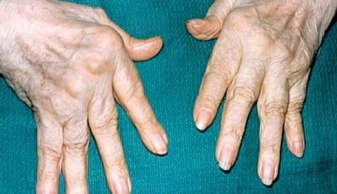 Ревматоидный артрит, полиартрит суставов боли суставах при сахарном диабете